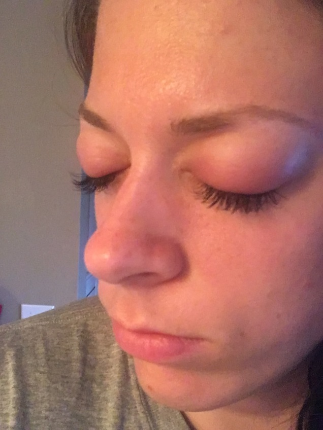 Lash Extension Glue Allergy Fabulous In Fayetteville